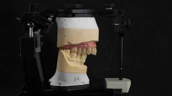 Figure 24 Mounted working with Mk 1 immediate denture.