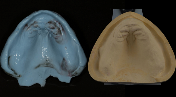 Figure 62 Definitive impression made in alginate (Blueprint) with resultant definitive cast