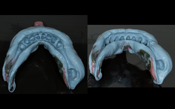 """Fig 56 The finalised working impression in alginate. The patient was encouraged to exaggerate the tongue movements by """"really pushing"""" the tongue out and moving it from """"side to side"""" to limit excess alginate over optimally border moulded greenstick compo"""